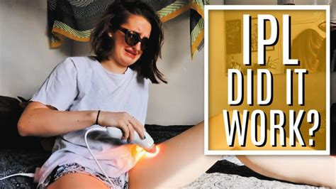THE RESULTS | LASER HAIR REMOVAL AT HOME | IPL REVIEW