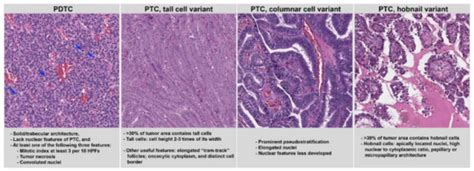 Cancers | Free Full-Text | Critical Prognostic Parameters