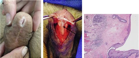Recurrence after management of meatal balanitis xerotica
