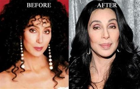 Goddess Of Pop, Cher Plastic Surgery Before And After Photos